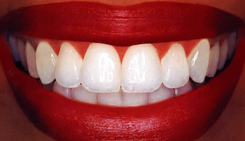 Beauty Advice: At  Home Teeth Whitening Solution