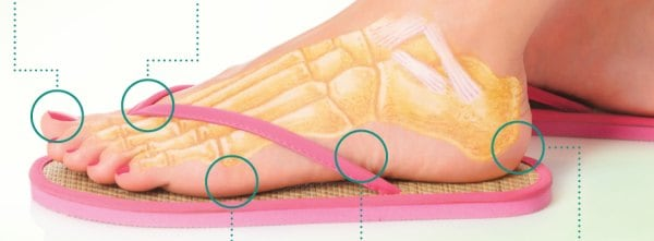 Are Flip Flops Dangerous? Here's What an NY Podiatrist Has to Say