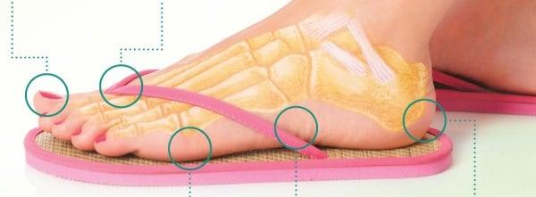 Flip flop Dangers