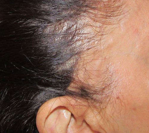 hair loss in women -- alopecia areata