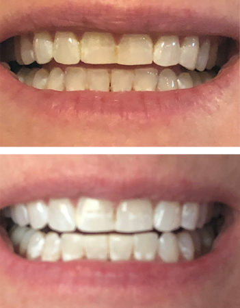 Before and after images of teeth during Smile Brilliant whitening process