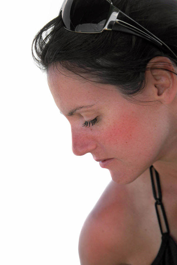 Woman with sunburn which can exacerbate large pores