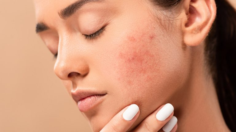 close up of woman with acne scars