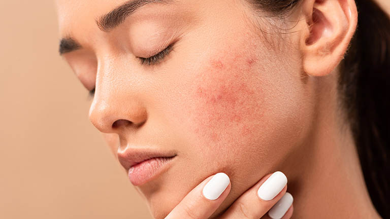 How to Get Rid of Acne Scars 8 Ways: The Complete Guide